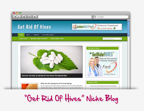 Get Rid Of Hives Niche Blog